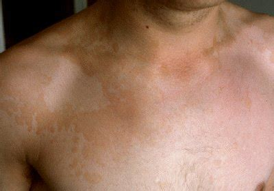 Fungal Infection Images - Tinea versicolor